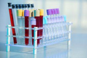 DPNI: le Comité de Bioéthique belge réservé sur son extension aux anomalies des chromosomes sexuels