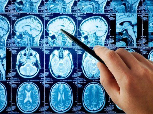 Une zone du cerveau identifiée comme « porte de la conscience »